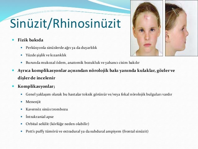 Sinüzit/Rhinosinüzit  Tedavi; destek tedavisi uygulanır  Nazal dekonjestanlar (>3 gün verme;rhinitis medicamentosa)  İn...