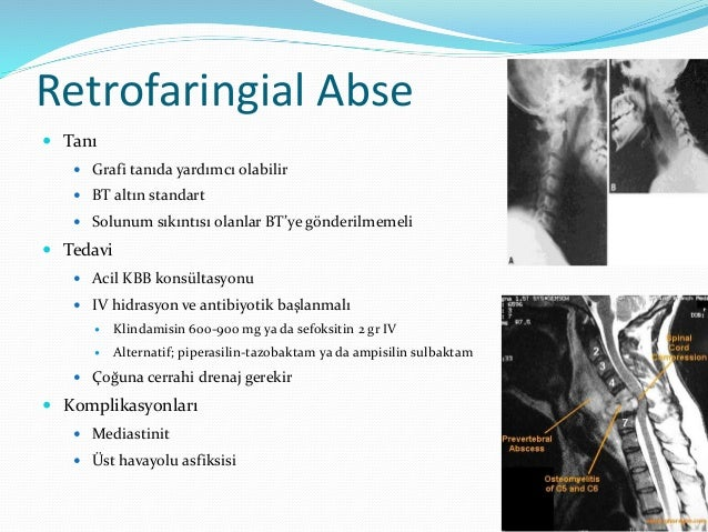 Epiglottit  Klinik  Disfaji, odinofaji, dispne  3 D bulgusu  Disfaji, Drooling (ağızdan salya akması), Distress  Ateş...
