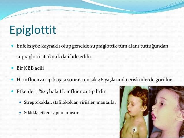 Epiglottit Tanı  Hikaye, fizik bakı, grafi ve fiberoptik laringoskopi ile konur  BT'ye gerek yoktur hatta supine yatama...