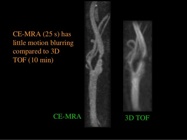 CE-MRA 3D TOF CE-MRA (25 s) has little motion blurring compared to 3D TOF (10 min)
