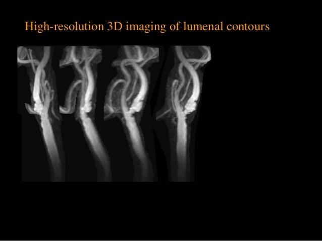 High-resolution 3D imaging of lumenal contours