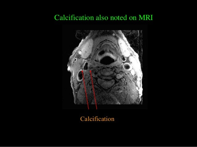 Calcification Calcification also noted on MRI