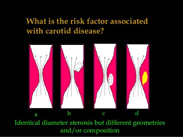What is the risk factor associated with carotid disease? a b c d Identical diameter stenosis but different geometries and/...