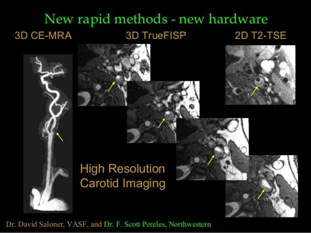 Dr. David Saloner, VASF, and Dr. F. Scott Pereles, Northwestern High Resolution Carotid Imaging 3D CE-MRA 3D TrueFISP 2D T...