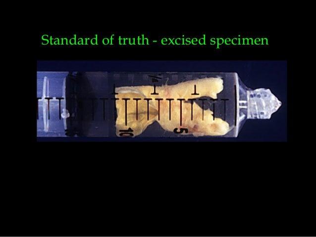 Standard of truth - excised specimen