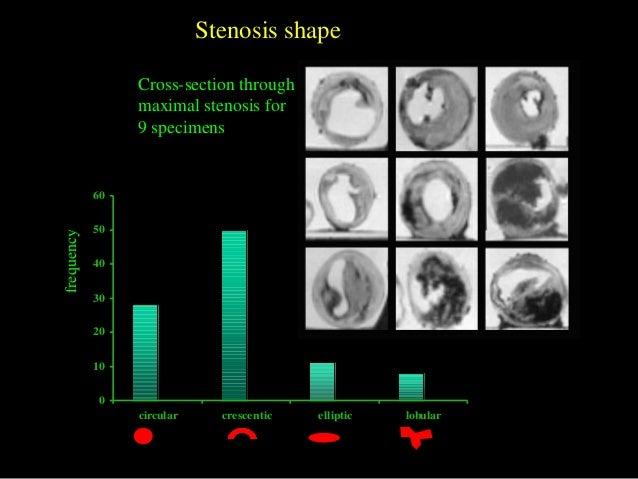 0 10 20 30 40 50 60 circular crescentic elliptic lobular frequency Cross-section through maximal stenosis for 9 specimens ...