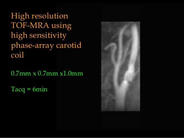 High resolution TOF-MRA using high sensitivity phase-array carotid coil 0.7mm x 0.7mm x1.0mm Tacq = 6min