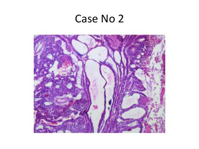 Case No 2
