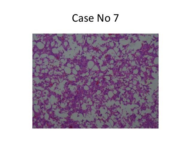 Case No 7