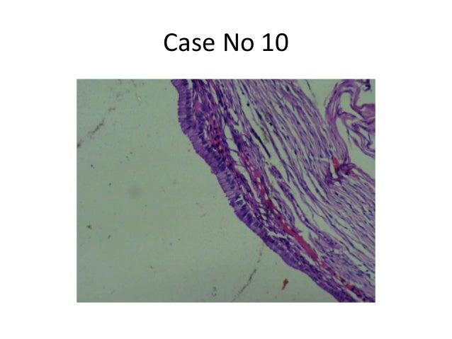 Case No 10