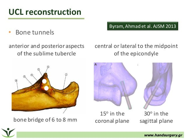 ucl reconstruction Background:the medial ulnar collateral ligament (ucl) is the primary restraint to valgus load, and injury is commonly encountered as a result of overuse in throwing athletes reconstruction of this ligament has allowed for a high rate of return to sport for elite pitchers public perception of.