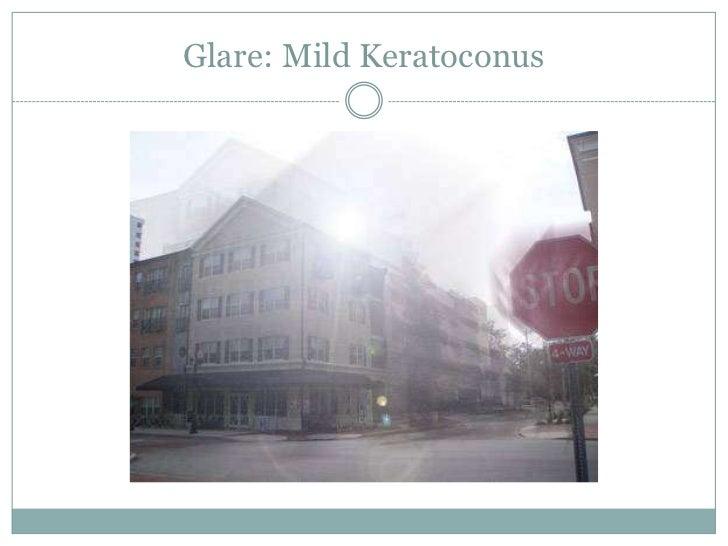 Glare: Mild Keratoconus<br />
