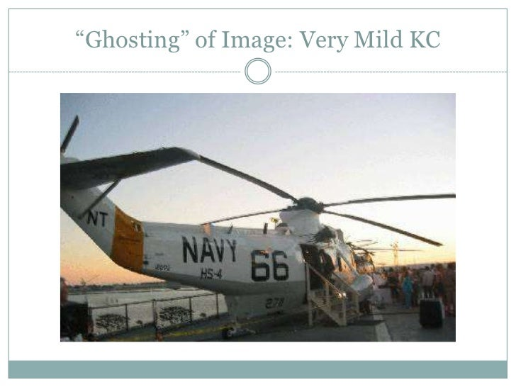"""""""Ghosting"""" of Image: Very Mild KC<br />"""