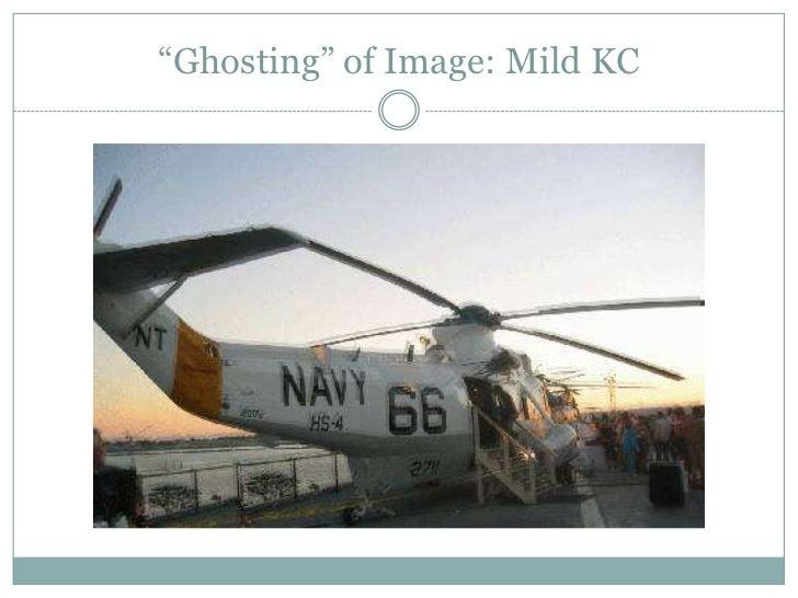 """""""Ghosting"""" of Image: Mild KC<br />"""