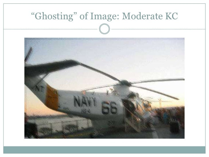 """""""Ghosting"""" of Image: Moderate KC<br />"""