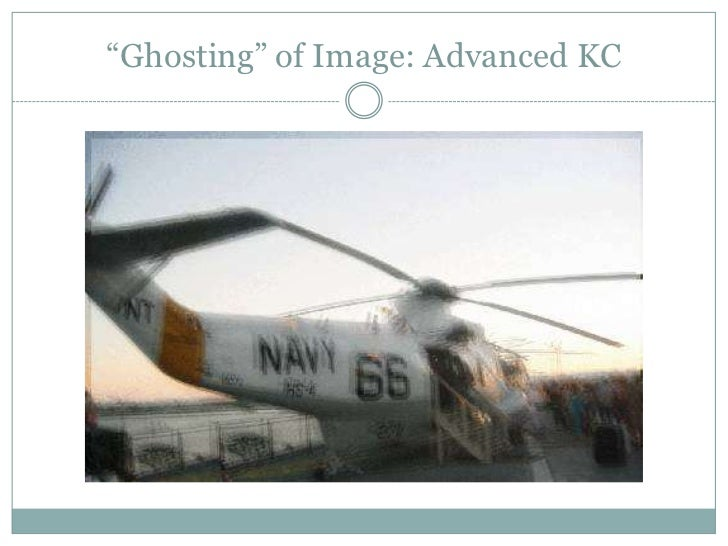 """""""Ghosting"""" of Image: Advanced KC<br />"""