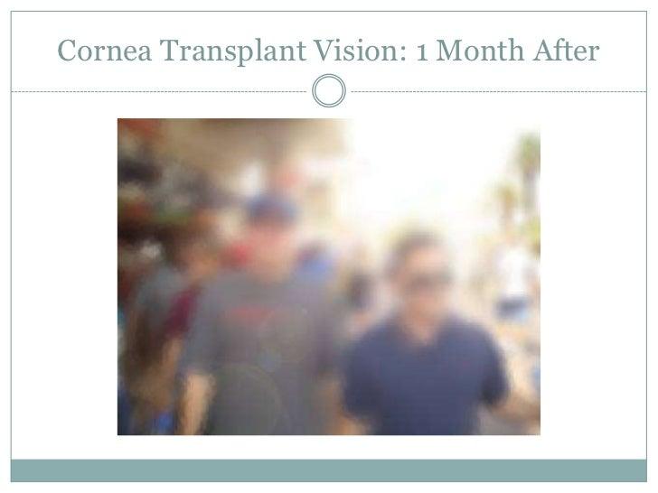 Eventually, the only alternative is surgery</li></ul>a cornea transplant<br />Glare<br />Ghosting<br />Distortion<br />Hal...