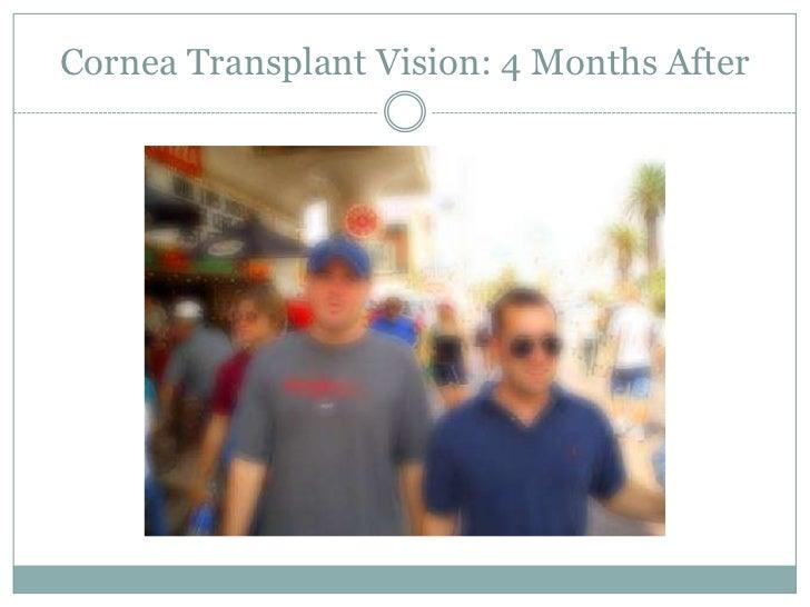 Cornea Transplant Vision: 2 Days After<br />