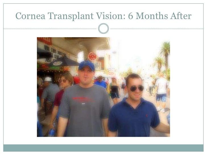 Cornea Transplant Vision: 1 Month After<br />