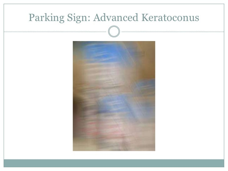 Parking Sign: Advanced Keratoconus<br />