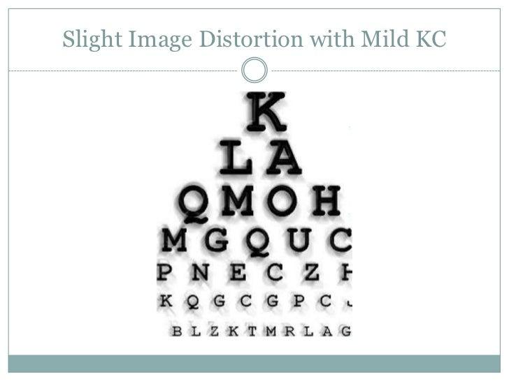 Slight Image Distortion with Mild KC<br />