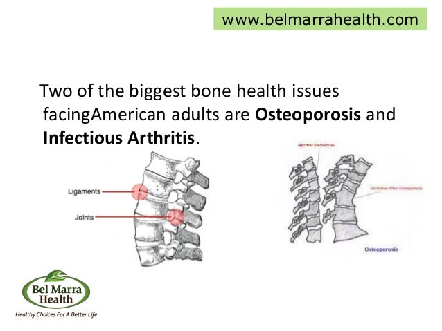 Two of the biggest bone health issues facingAmerican adults are Osteoporosis and Infectious Arthritis. www.belmarrahealth....