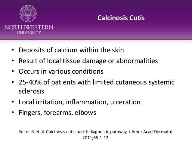 Skin Complications in Scleroderma