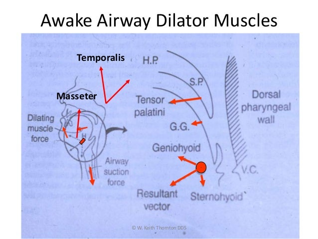 Awake Airway Dilator Muscles © W. Keith Thornton DDS Temporalis Masseter