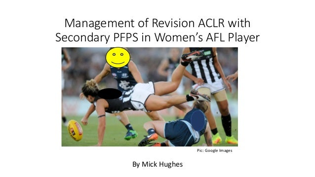 Management of Revision ACLR with Secondary PFPS in Women's AFL Player By Mick Hughes Pic: Google Images