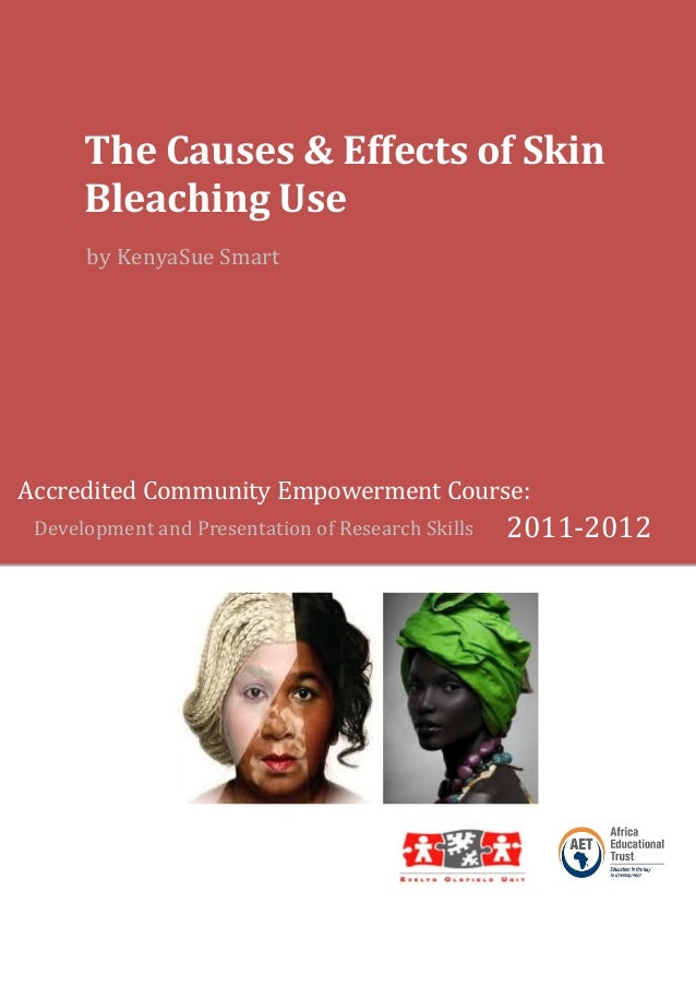 The Causes & Effects of Skin Bleaching Use by KenyaSue Smart  Accredited Community Empowerment Course: Development and Pre...