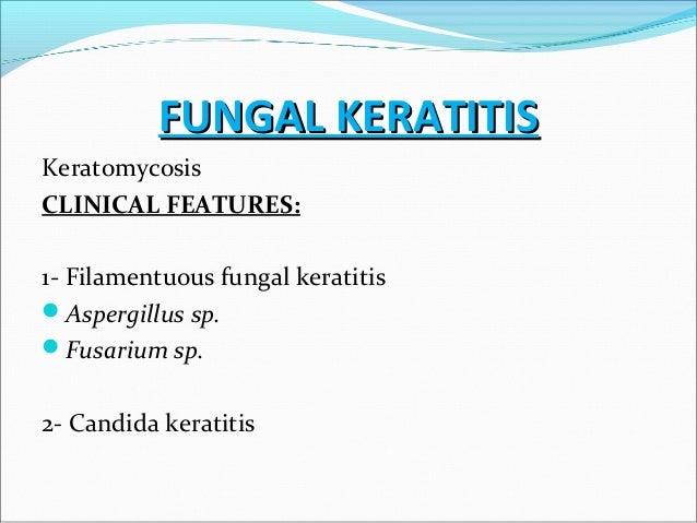 filamentous fungal keratitis