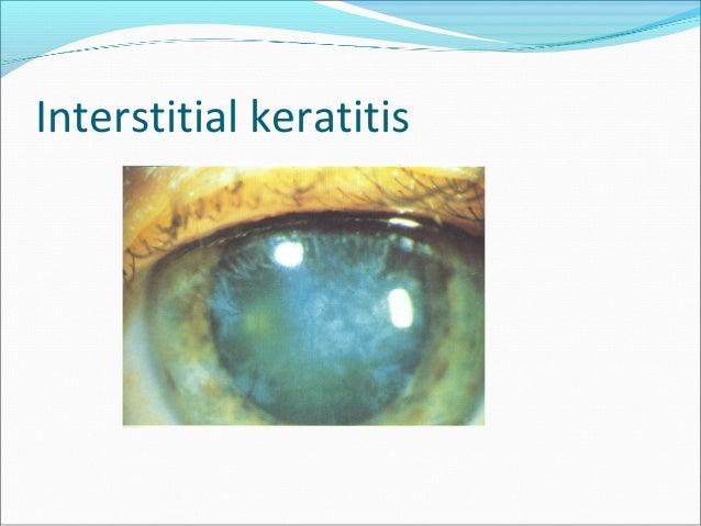 COMPLICATIONS OF KERATITIS