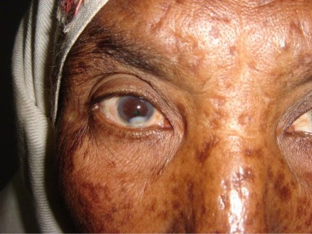 OTHER VIRAL KERATITISStromal Necrotic KeratitisDisciform Keratitis