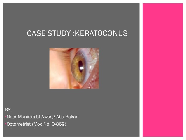 BY: •Noor Munirah bt Awang Abu Bakar •Optometrist (Moc No: O-869) CASE STUDY :KERATOCONUS