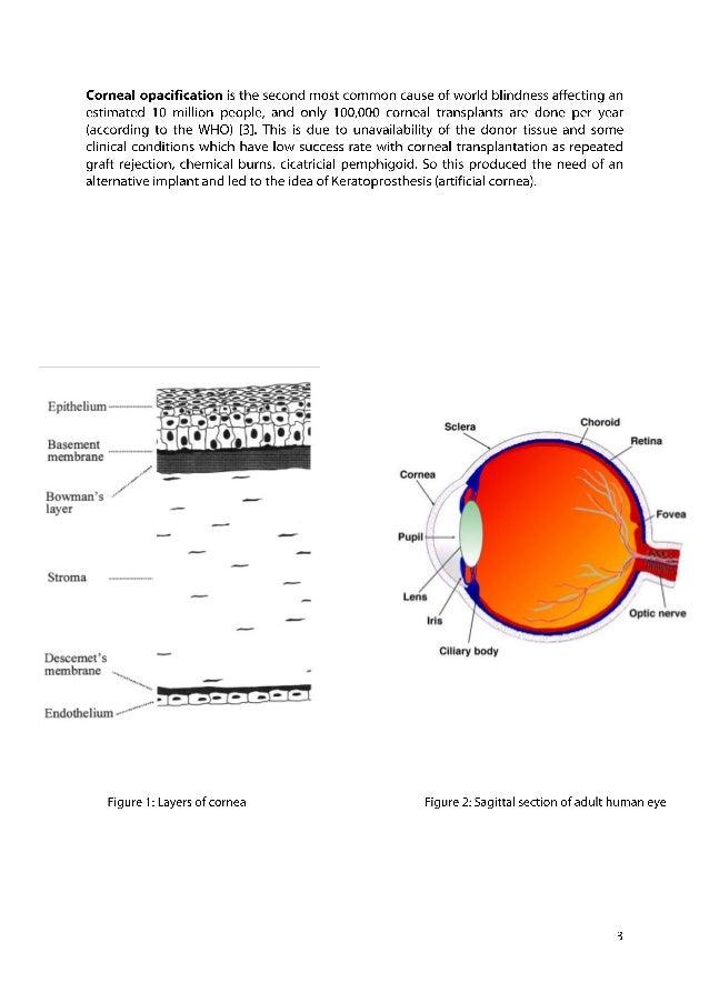Boston Keratoprosthesis (KPro) - EyeWiki