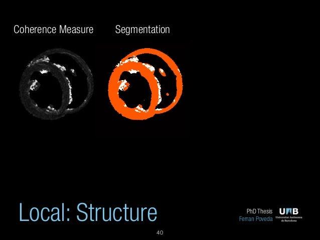Medical image segmentation thesis
