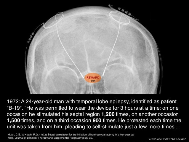 """ERIKSCHOPPEN.COM 1972: A 24-year-old man with temporal lobe epilepsy, identified as patient """"B-19"""". """"He was permitted to we..."""