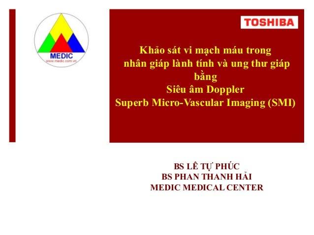 Khảo sát vi mạch máu trong nhân giáp lành tính và ung thư giáp bằng Siêu âm Doppler Superb Micro-Vascular Imaging (SMI) BS...