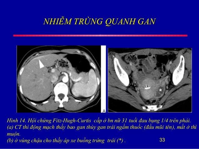 NHIỄM TRÙNG QUANH GANNHIỄM TRÙNG QUANH GAN 33 Hình 14. Hội chứng Fitz-Hugh-Curtis cấp ở bn nữ 31 tuổi đau bụng 1/4 trên ph...