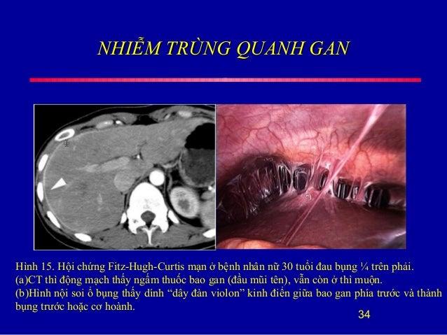 NHIỄM TRÙNG QUANH GANNHIỄM TRÙNG QUANH GAN 34 Hình 15. Hội chứng Fitz-Hugh-Curtis mạn ở bệnh nhân nữ 30 tuổi đau bụng ¼ tr...