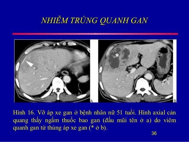 NHIỄM TRÙNG QUANH GANNHIỄM TRÙNG QUANH GAN 36 Hình 16. Vỡ áp xe gan ở bệnh nhân nữ 51 tuổi. Hình axial cản quang thấy ngấm...