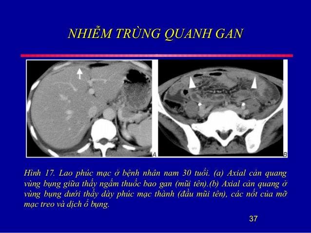 NHIỄM TRÙNG QUANH GANNHIỄM TRÙNG QUANH GAN 37 Hình 17. Lao phúc mạc ở bệnh nhân nam 30 tuổi. (a) Axial cản quang vùng bụng...