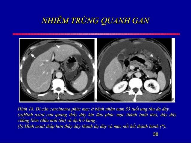 NHIỄM TRÙNG QUANH GANNHIỄM TRÙNG QUANH GAN 38 Hình 18. Di căn carcinoma phúc mạc ở bệnh nhân nam 53 tuổi ung thư dạ dày. (...