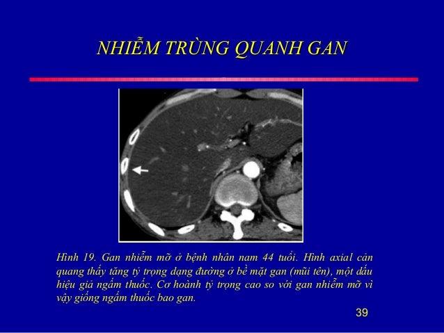 NHIỄM TRÙNG QUANH GANNHIỄM TRÙNG QUANH GAN 39 Hình 19. Gan nhiễm mỡ ở bệnh nhân nam 44 tuổi. Hình axial cản quang thấy tăn...