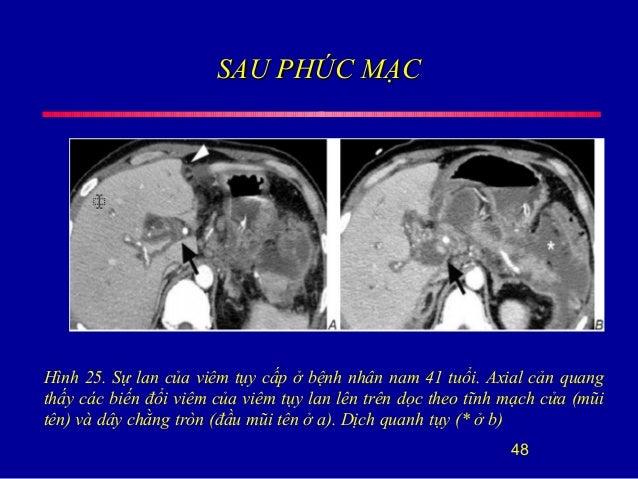 SAU PHÚC MẠCSAU PHÚC MẠC 48 Hình 25. Sự lan của viêm tụy cấp ở bệnh nhân nam 41 tuổi. Axial cản quang thấy các biến đổi vi...