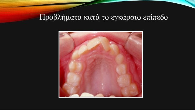 Προβλήματα κατά το εγκάρσιο επίπεδο • Ετερόπλευρες και αμφοτερόπλευρες σταυροειδείς συγκλείσεις είναι το αποτέλεσμα οδοντι...