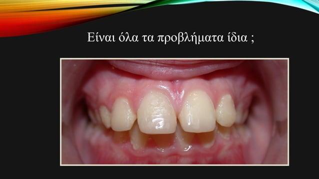 Προβλήματα II τάξεως • Είναι δυνατές οι σκελετικές αλλαγές ή μήπως η διόρθωση οφείλεται σε οδοντοφατνιακές αλλαγές ; • Είν...