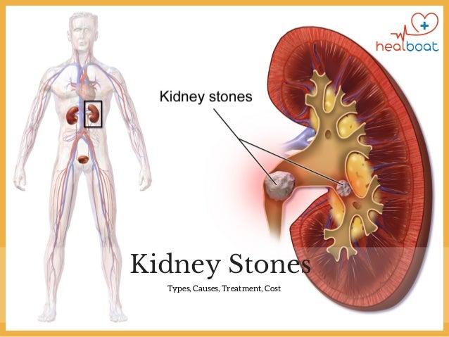 Best Diet To Prevent Kidney Stones
