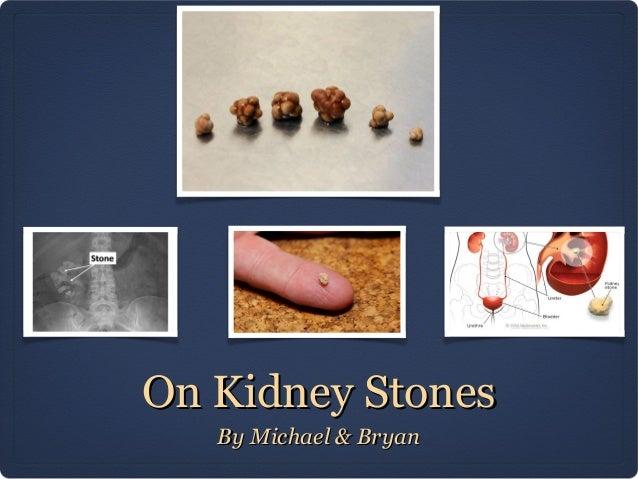On Kidney Stones By Michael & Bryan