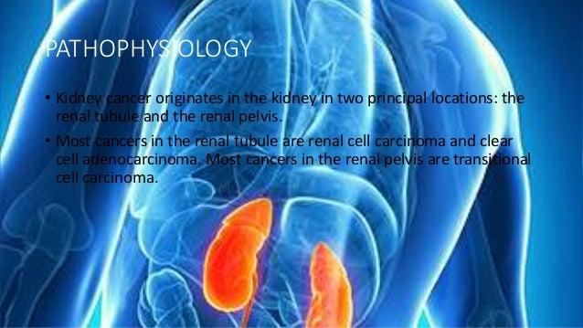 Kidney Tumor